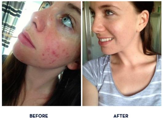 Natural skincare with real results! : Nourished Life Australia
