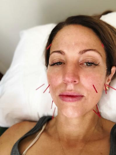What Is Cosmetic Acupuncture? | Nourished Life Australia
